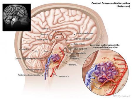 脑干海绵状血管瘤的立体定向放射外科治疗